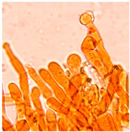 Pas de cystides mais des terminaisons hyphales capitées