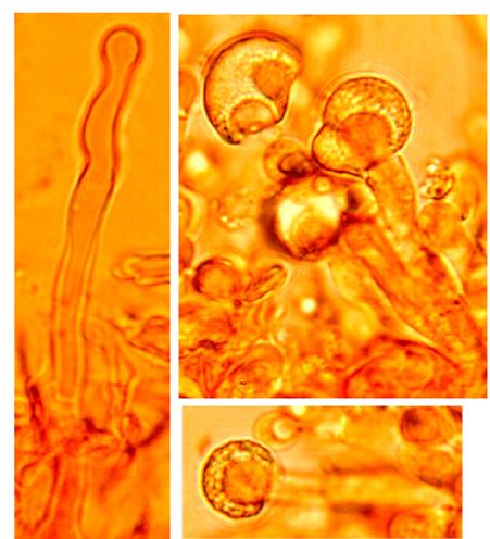 Cystides de deux types, -  cystides avec un sommet capité et une incrustation résineuse au sommet, lisses et à paroi mince - cystides légèrement sinueuses avec des constrictions et un sommet obtus.
