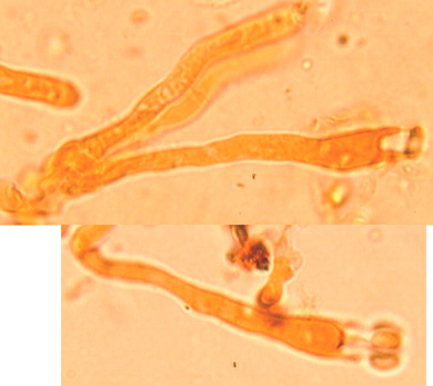 Basides à quatre stérigmates, étroitement clavées, à boucle basale.