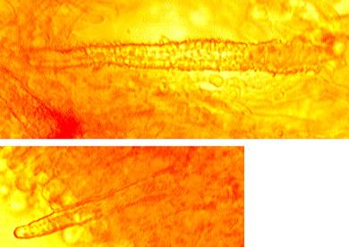 Cystides abondantes, cylindriques à coniques, densément incrustées, paroi mince à épaisse Elles émergent de l'hymenium.