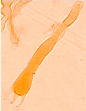 Basides clavées à subcylindriques. Quatre stérigmates et non bouclées à la base