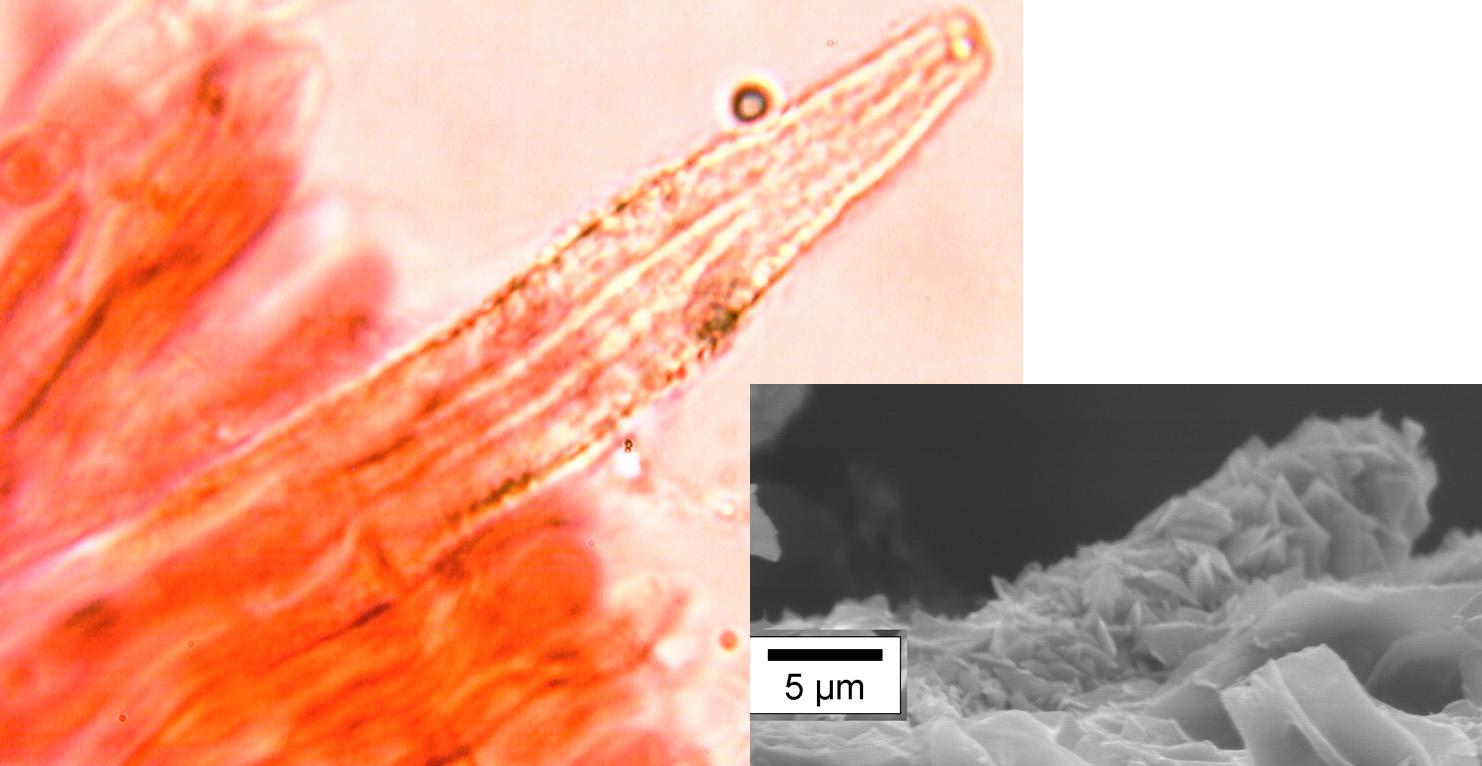 Cystides émergentes ,densément incrustées. A droite une cystide vue au microscope électronique à balayage, permettant d'observer les cristaux.