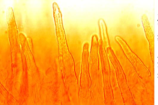 Hyphes incrustées au sommet des aiguillons.