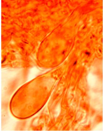 Cystides abondantes, souvent incluses dans l'hymenium avec une boucle basale.