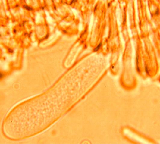 Cystides (leptocystides) abondantes, clavées à paroi mince