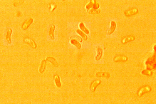 Spores allantoïdes, (3.9/5) X (1.2/2.2) µm; lisses, à paroi mince.