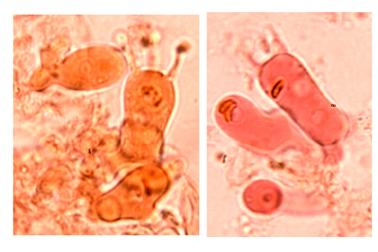 Basides pleurales, cylindriques à 4 stérigmates et boucle basale.