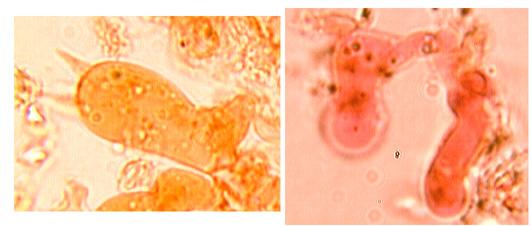 Basides pleurales, cylindriques à 4 stérigmates et boucle basale