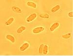 Phanerochaete raduloides spores