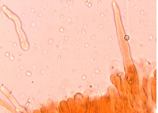 Cystides variables en forme et en nombre; généralement cylindriques avec un apex aigüe  ou arrondi; paroi mince mais plus ou moins épaissie à la base; plus ou mois incrustées