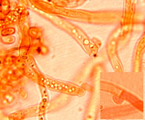 Système hyphal monomitique avec des hyphes à paroi mince ou épaisse souvent ramifiées avec des boucles, parfois présence de globules lipidiques.