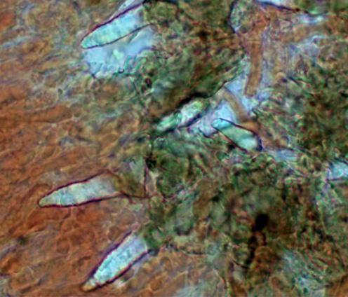 Lamprocystides arrondies à conique sau sommet incrusté,et à paroi épaisse et brunâtre
