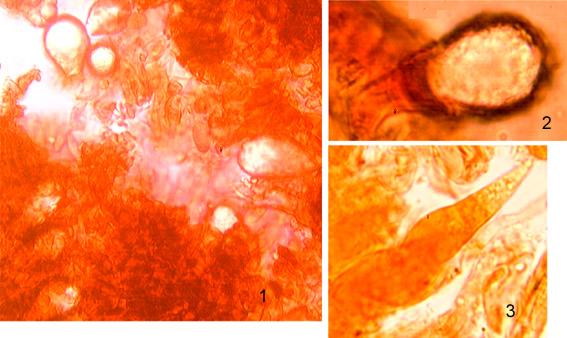 Lamprocystides( 1 et 2)  subglobuleuses à rondes avec des incrustations homogènes Gloéocystides (3) avec un sommet obtus ou subulé, à paroi épaissie à la base avec un contenu granuleux réagissant en noir à la sulfo-vanilline  Les dendrohyphydes ne sont pas photographiées.