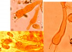 Peniophorella pallida baside