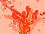 Peniophorella pallida cystides