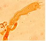 Peniophorella praetermissa baside