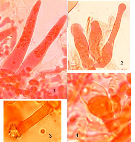 Cystides de trois types: - gloéocystides fusiformes (1), à paroi mince avec un contenu homogène, nombreuses et non émergentes de l'hyménium. - leptocystides cylindriques (2) avec un sommet arrondi, ou  garni de cristaux (3) - stéphanocystides (4) incluses dans l'hyménium,entourées d'un collerette dentée (non visible sur les cliché) et excrétant une grosse goutte sphérique.