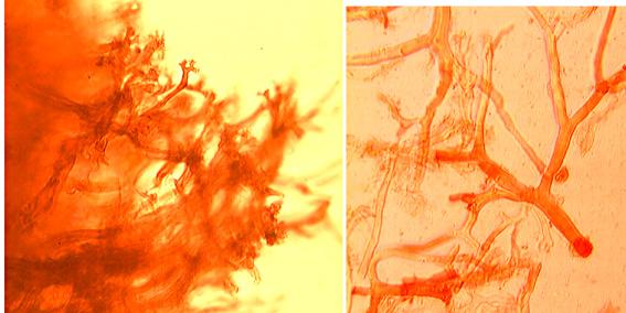 Hyphes squelettiques à paroi épaisse dendroïdes