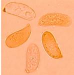 Megalocystidium leucoxanthum, spores