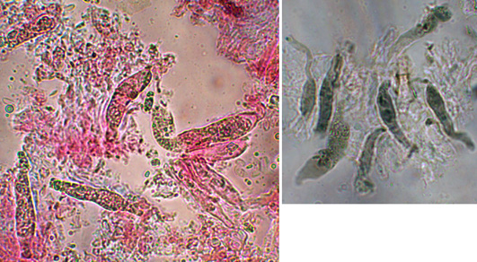 Gloeocystides tubulaires, nolbreuses, quelques unes avec un appendice aoical, variables en forme et en tailles, à paroi lisse ou légèrement épaissie; incluses ou arrivant au même niveau que les basides, SA+