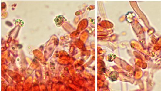 Nombreuses cystides clavées à légèrement ventrues, à paroi épaisse. chaque cystide montre une couronne apicale de cristaux ou est enveloppées par des cristaux dans la partie supérieure