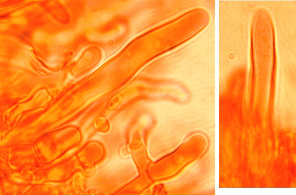 Leptocystides longuement cylindriques, hyalines à paroi épaisse et s'amincissant au sommet qui est obtus.