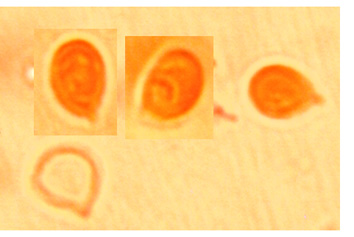 Spores sub-globuleuses, lisses à paroi mince. (3.4/5.9) x (3.2/3.9) µm