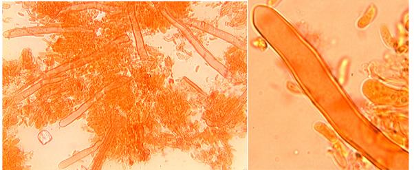 Leptocystides à paroi épaisse,sauf au sommet, émergentes, arrondies.