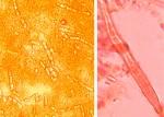 Laxitextum bicolor, cystides