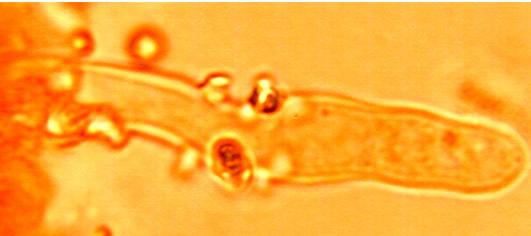 Cystides cylindriques à tubulaires, à sommet obtus, portant des gros cristaux.