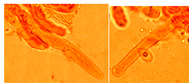 Cystides cylindriques avec un apex effilé ou parfois obtus; non incrustées et sans boucle basale