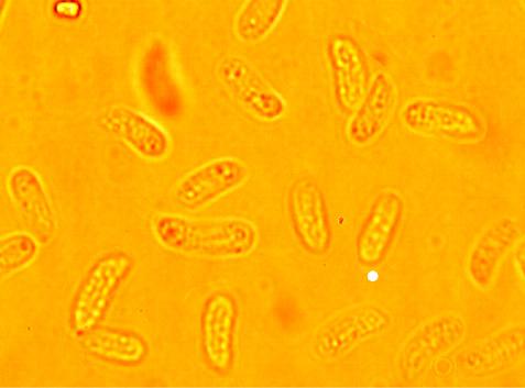 Sporessubcylindriques à allantoïdes, lisses à paroi mince (6.8/10) x (2.5/3.6) µm