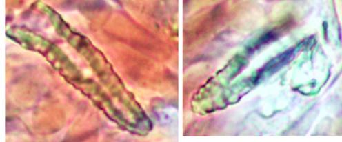 Lamprocystides à paroi épaisse, sommet fusiforme fortement incrusté