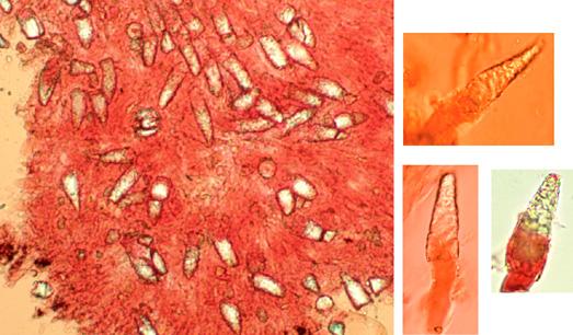 Lamprocystides clavées à coniques, paroi épaisse, fortement incrustées dans la partie supérieure